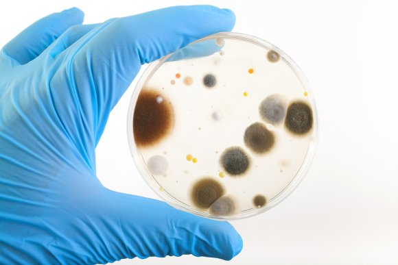 Bacteria Assessment Services